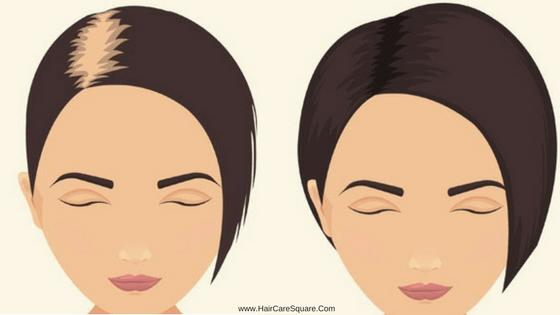 Strengthen hair follicles