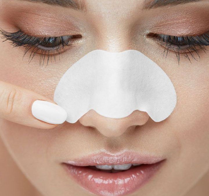 Tips for getting rid of Blackheads and Whiteheads
