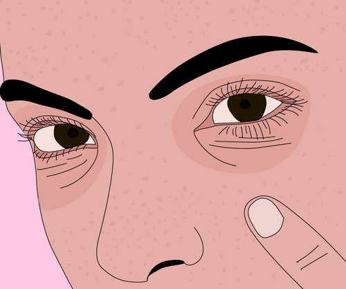 Dark Circles Under The Eyes: Causes, Symptoms, And Treatment Options
