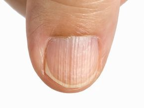 Why do i have lines on my nails and how do i remove them?