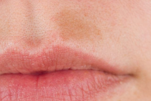 How to remove dark spots from the face  naturally