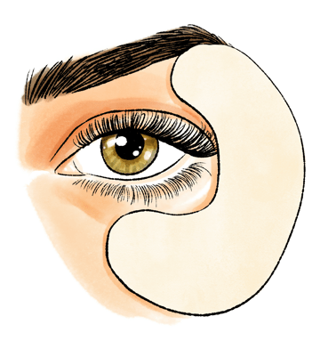 Bag under the eyes: how to remove bags under the eyes?