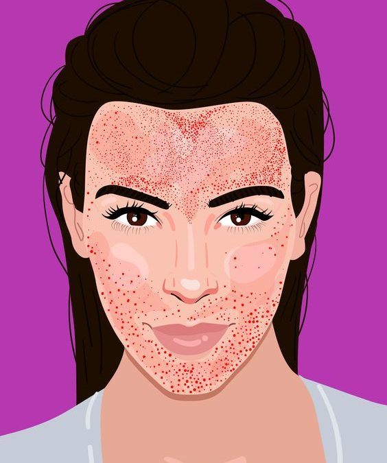 What Is A Vampire Facial: Microneedling With PRP