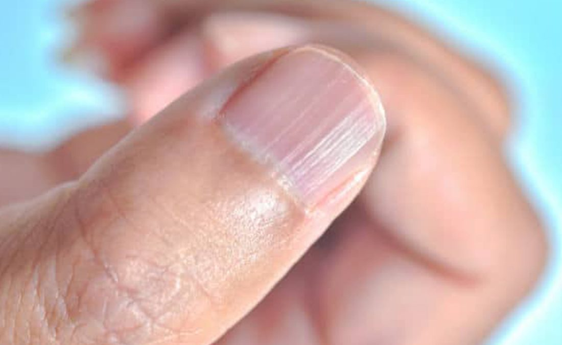 How to get rid of horizontal lines on toe nails