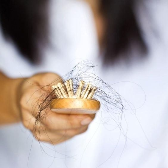 Female hair loss and shedding + remedies for control